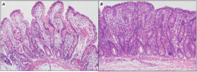 "Figure 1.  Biopsy specimen showing normal villi structure (A) and biopsy-proven changes of untreated celiac disease (B).  Villi are ""flattened"" and rudimentary in celiac disease (Adapted from Freeman, 2008)."