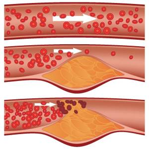 Figure 1: As blood flows through the arteries, LDL cholesterol can store itself in the artery walls. A plaque forms over time and can burst suddenly, causing a blood clot.