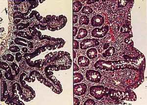 Figure 1. Healthy villi (left) are destroyed in celiac disease (right). Image from http://celiacdisease.about.com/od/celiacdiseaseglossary/g/Villi.htm